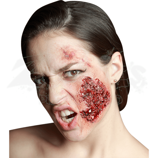 Infected Itchy Prosthetic