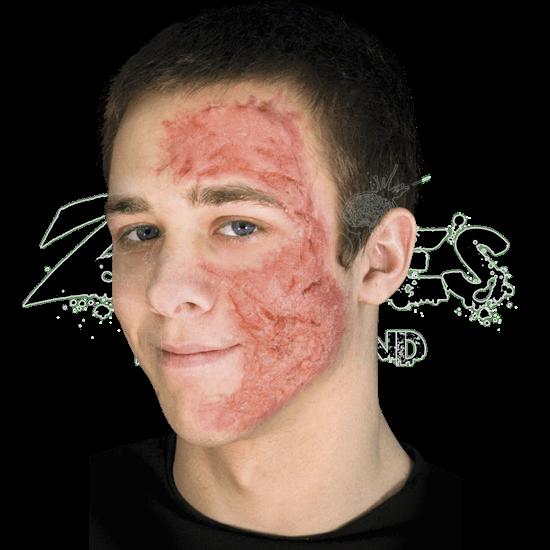 Burn Scar Gel